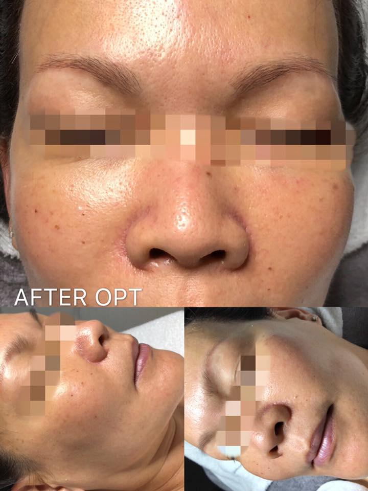 OPT Skin Rejuvenation