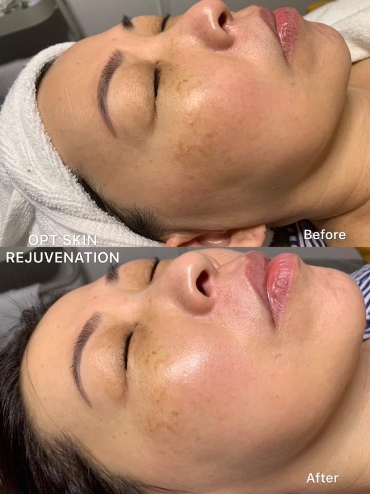OPT Skin Rejuvenation.